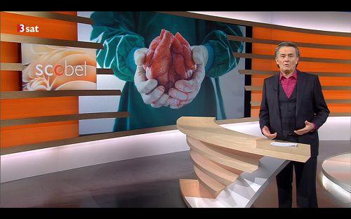 2016-2-25-organharvesting-germany-03